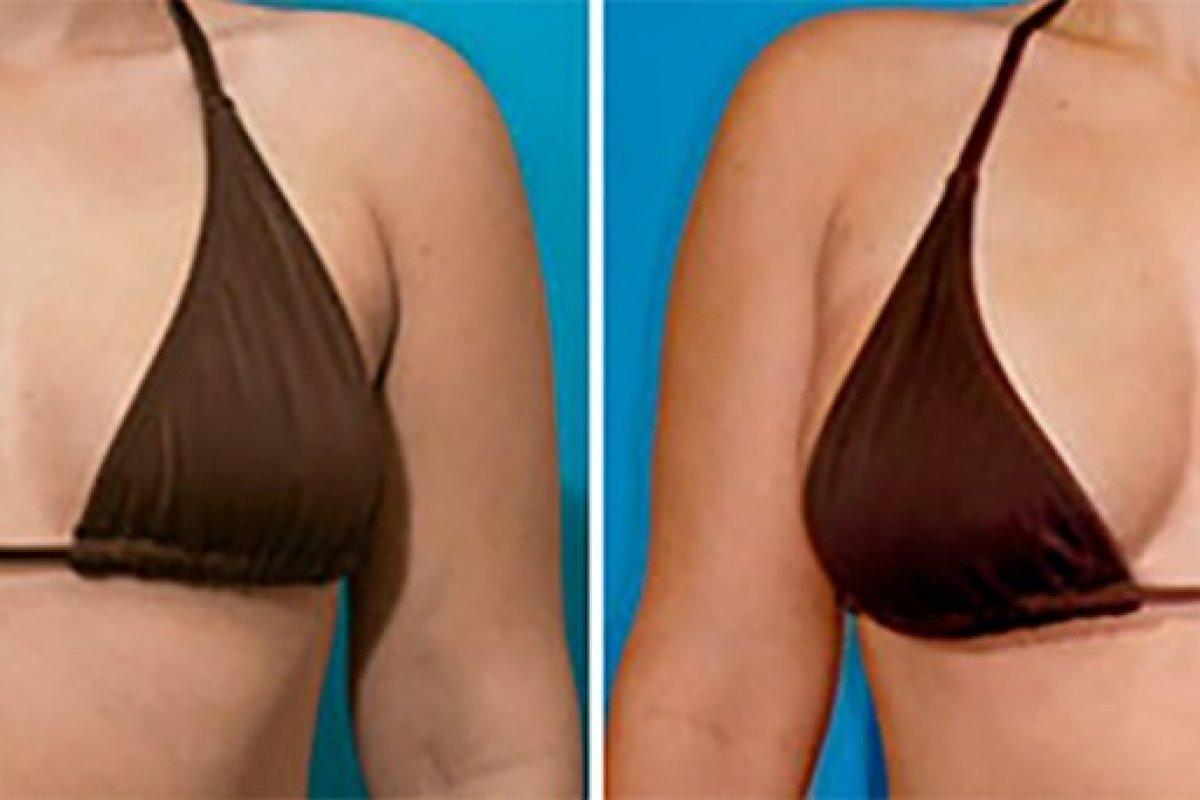 Brust-Modellierung vorher/nachher