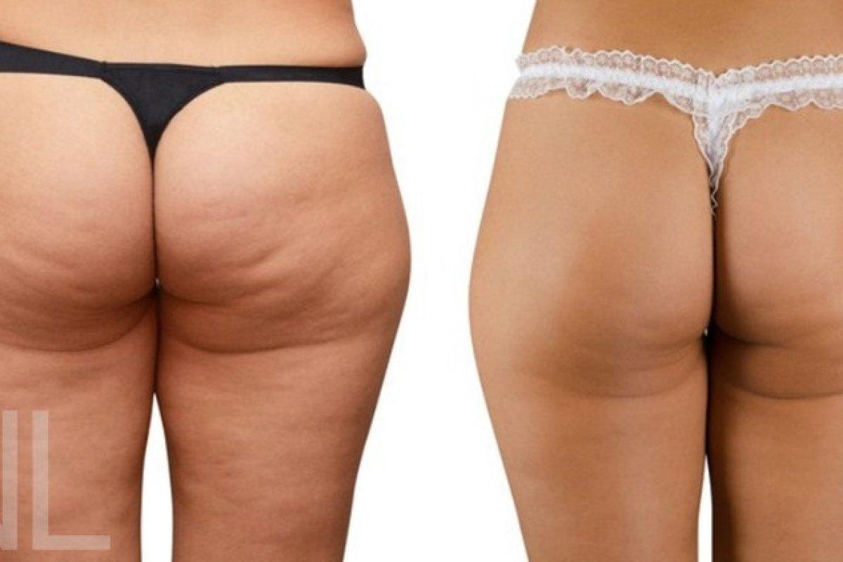 Cellulite vorher/nachher