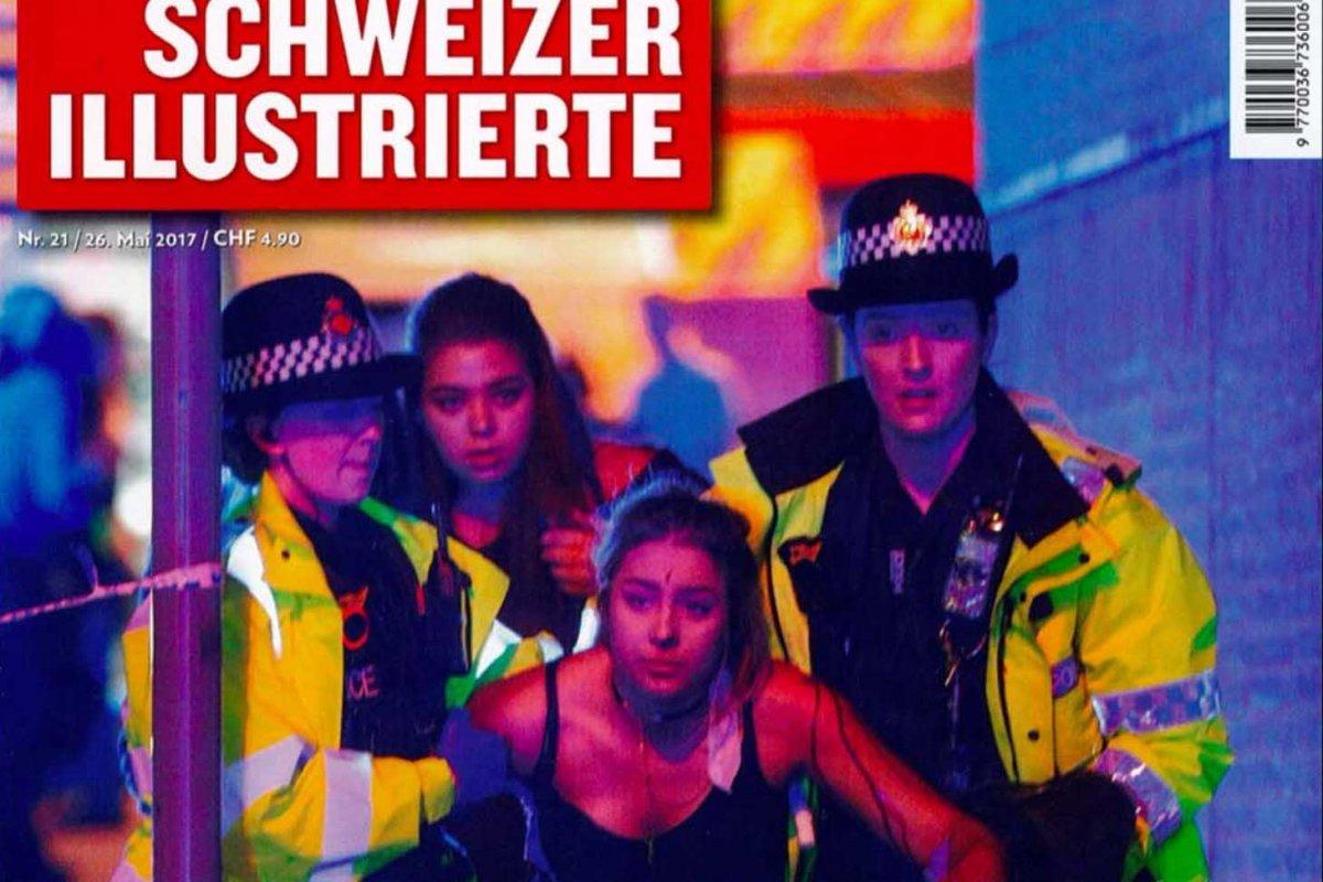Schweizer Illustrierte: Cellulite – behandelbar, aber nicht zu heilen