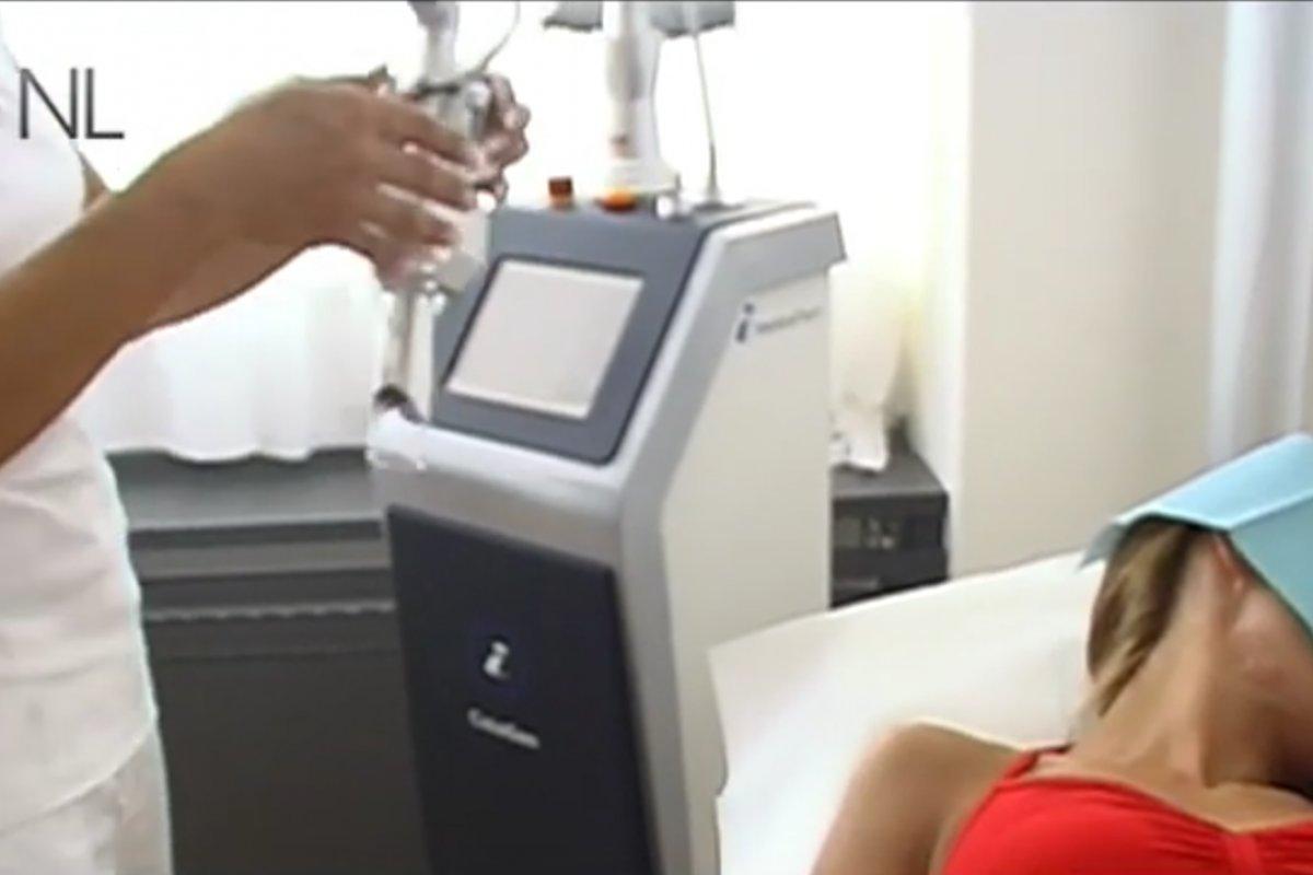 Fraktionierter CO<sub>2</sub> Laser gegen Falten und alternde Haut