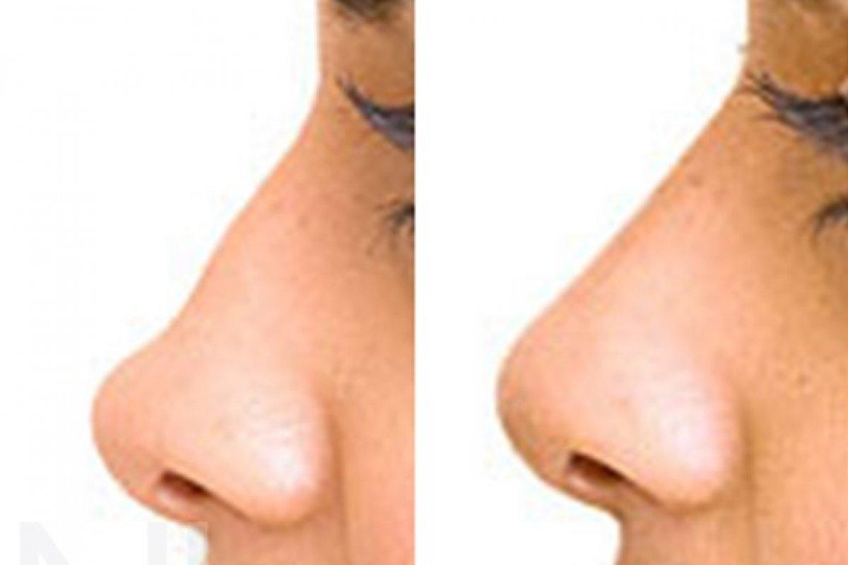 Nasenkorrektur mit Filler vorher/nachher